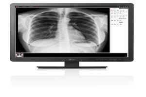 إل جي إلكترونيكس تكشف عن سلسلة من منتجات التصوير الطبي ضمن مشاركتها بمعرض  ميديكا الدولي
