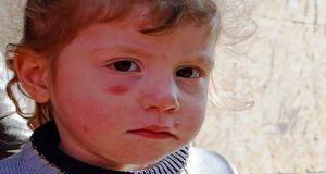 مسؤول: أكثر من ألفي إصابة لاشمانيا في ريف دمشق!