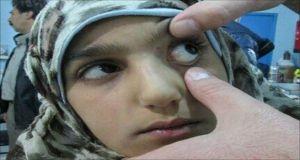 تسجيل 445 إصابة التهاب كبد في حمص خلال 2015