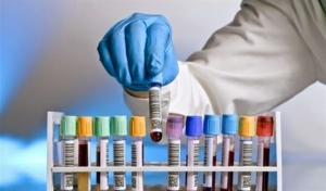 وزارة الصحة ترفع أجور التحاليل المخبرية بنسبة 66 بالمئة.. والمخابر تطالب بزيادتها